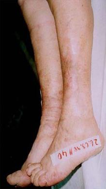 4 Monate nach Behandlungsbeginn
