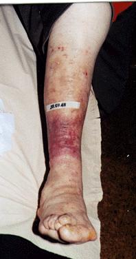 7 ½ Monaten nach Behandlungsbeginn