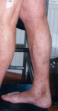 Patient nach der Verödungsbehandlung
